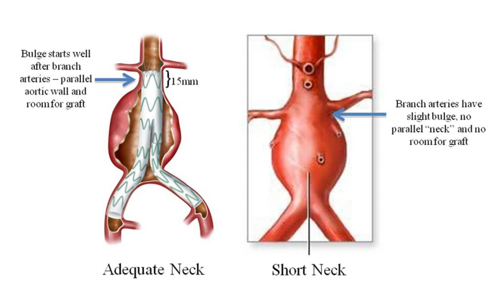 Nearly half of the 40,000 patients who undergo elective repair of aortic aneurysms do not have enough room for a graft between the aneurysm and the branch arteries.