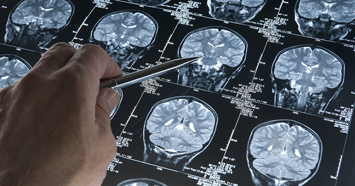 Cooling Brains to Treat Epilepsy